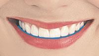 smilerule-1
